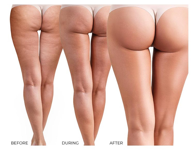 Before and after her solution booty enhancemenet cream